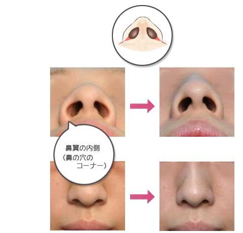 鼻 の 穴 が 大きい