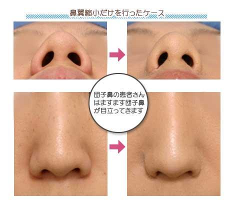 鼻翼縮小術パート2 | 美容整形・美容外科のヴェリテクリニック【公式 ...