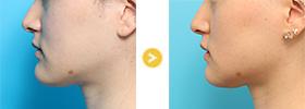 顎削-001