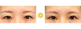 上眼瞼リフト-014